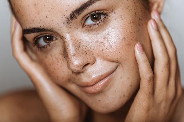 Пігментні плями: Причини появи на шкірі та як уникнути? -LEDA